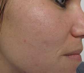 Facial texture improvement with Sublative™