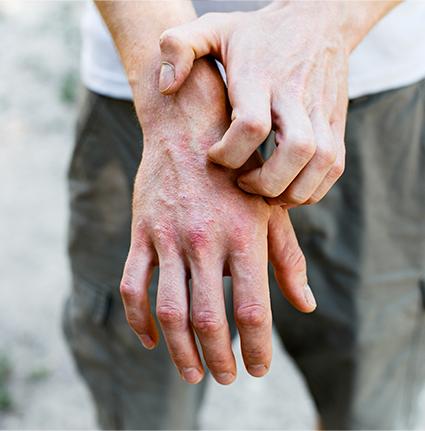 Skin Rash Doctor, Skin Specialist | Advanced Dermatology